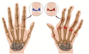 Лечение артрита в Ровно